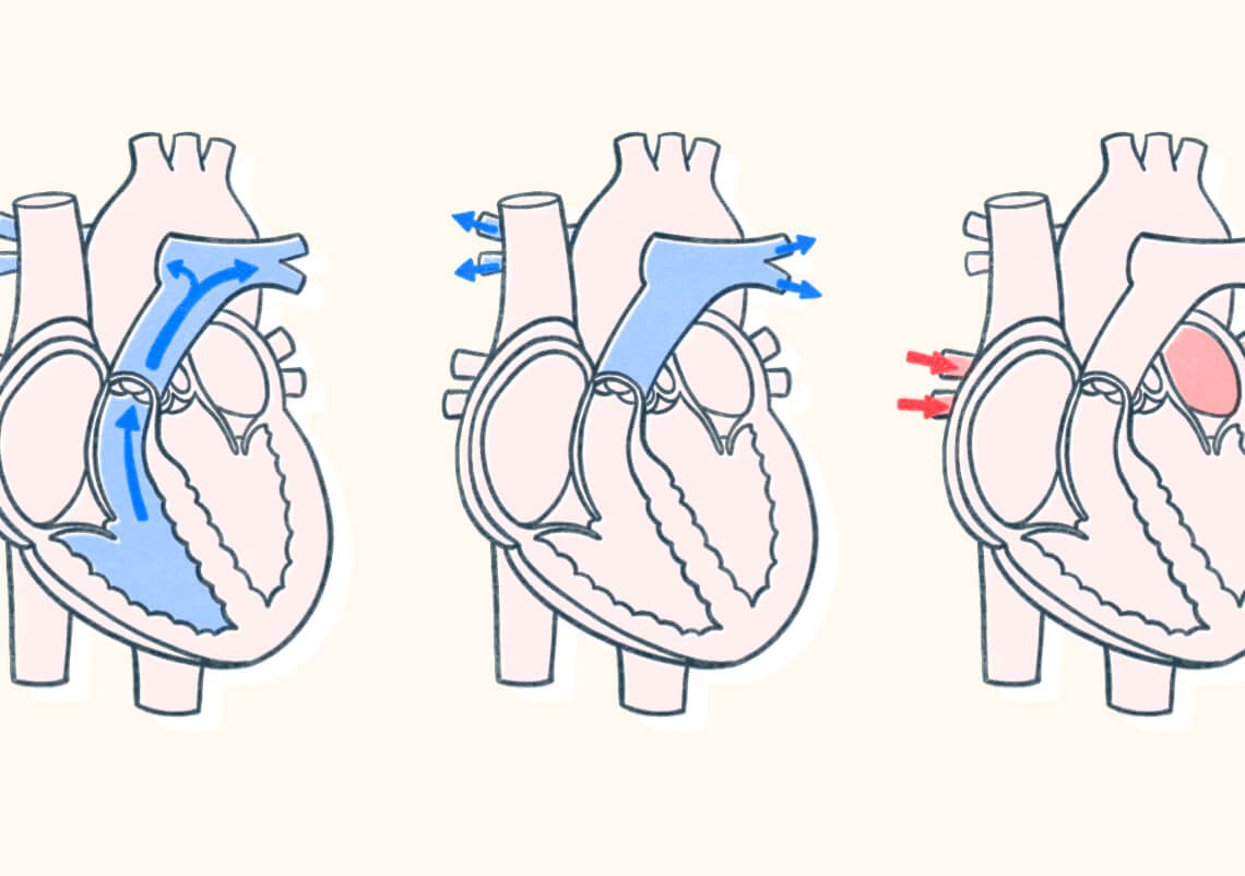 Diagram of how blood comes in and out of a human heart. Illustration.